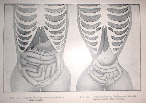 Deformation of the internal organs attributed to corset-wearing.