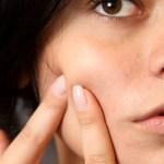 Receta Crema hidratante para piel grasa
