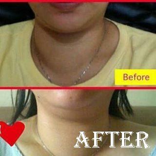 testimoni obat herbal propolis atasi tiroid bengkak