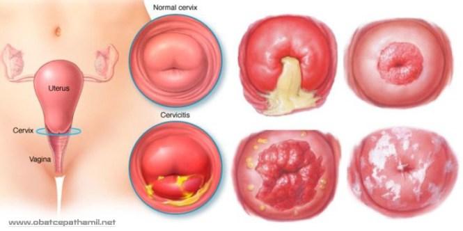 Obat Infeksi Mulut Rahim Yang Tersedia Di Apotik