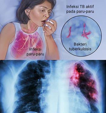 Obat Batuk TBC Yang Tersedia Di Apotik