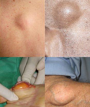 Obat Lipoma Di Apotik Resep Dokter