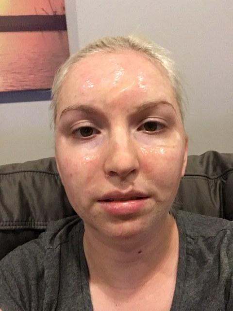 Mask after eleven minutes