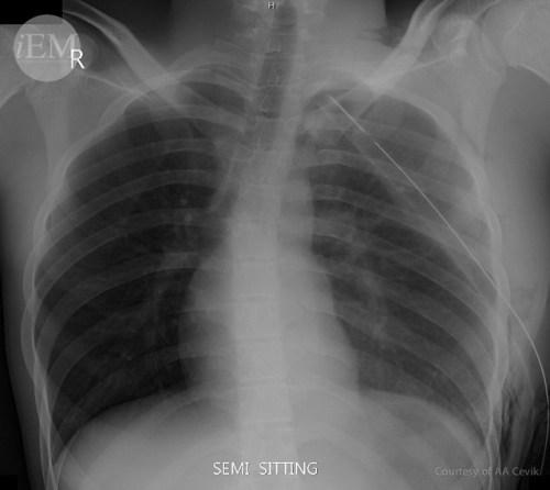 39.4 - pneumothorax 4