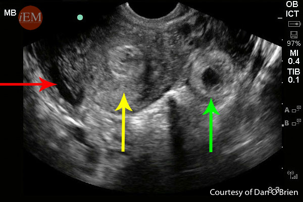 Figure 4 Ectopic Small Fluid Pseudogestational sac