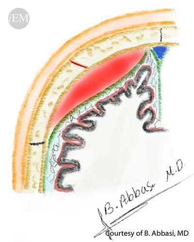 627.14 - Figure 14 - Schematic representation of epidural hematoma