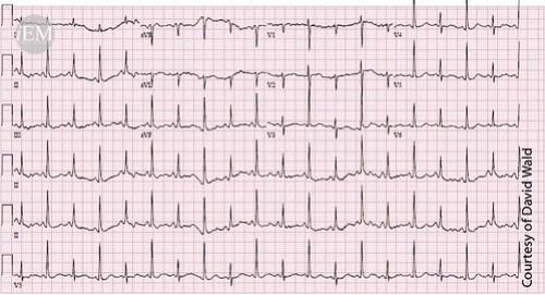 608 - Figure3 - pericardial effusion - ECG