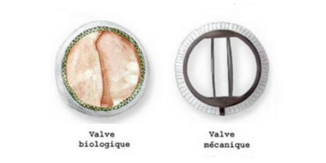 valve-naturelle-mécanique-différence