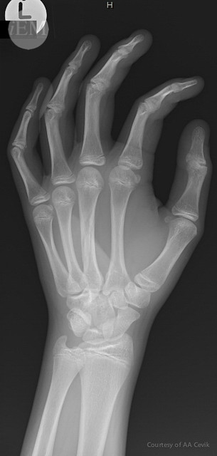 46.2 - 3rd metacarpal fracture 2