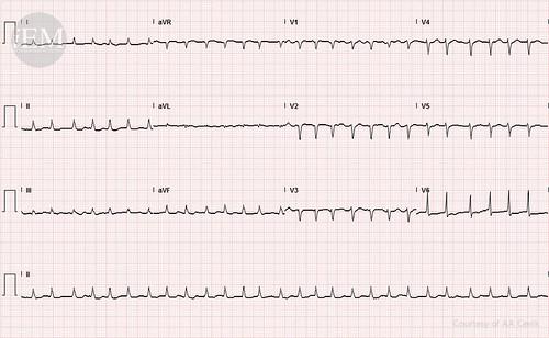 38 - atrial fibrillation
