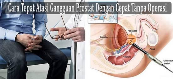 Obat Prostat Di Apotik Kimia Farma