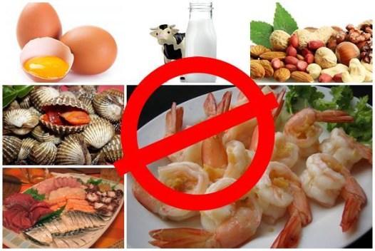 Makanan Yang Harus Dihindari Penderita Eksim