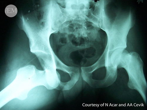 628.13 - hip dislocation
