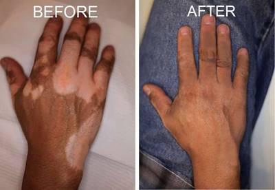 Cara Mengobati Vitiligo Agar Cepat Sembuh Total