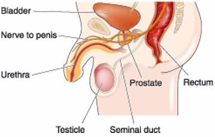 Jenis Penyakit Prostat Dan Cara Mengobati Prostat Berdasarkan Jenisnya