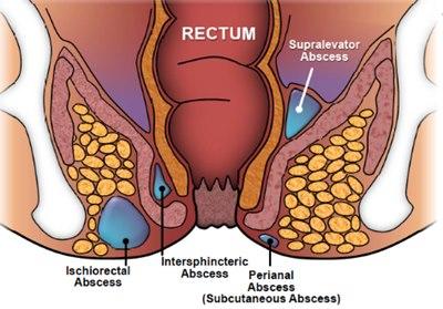 Obat Fistula Ani Yang Ampuh Di Apotik