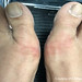 769 - itching toes - tinea pedis