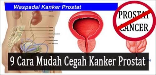 Cara Mudah Cegah Kanker Prostat Secara Alami
