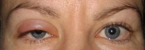 eyeball!!