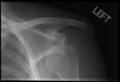 dislocated-shoulder