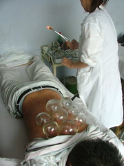 Cupping II