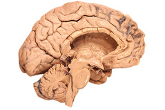 Human brain, medial view