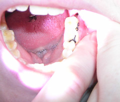 another close-up of my wisdom tooth dry socket...