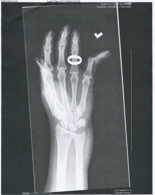 x-ray of my dislocated pinkie