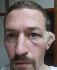 Ear bandage 2