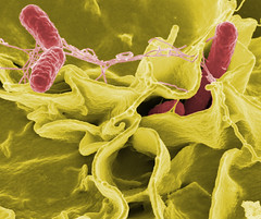 Salmonella typhimurium invading cultured human...