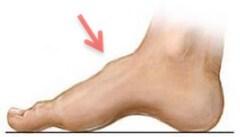 Metatarsal Cuneiform Joint Arthritis.
