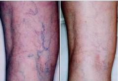 spider veins Alpharetta GA by Ageless Remedies of Alpharetta