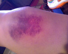 Possibly the most colorful awesome bruise I've ever had!