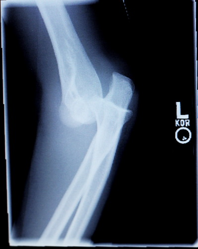 Dislocated left elbow