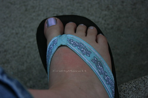 New FlipFlop Sunburn