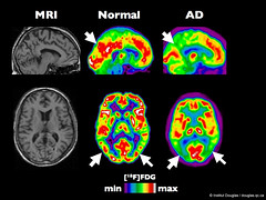PET scan of an healthy brain compared to a bra...