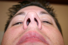 Nostrils before