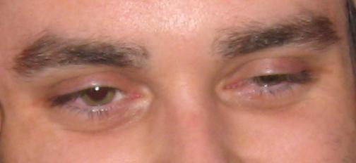 Party eye sleepy eye