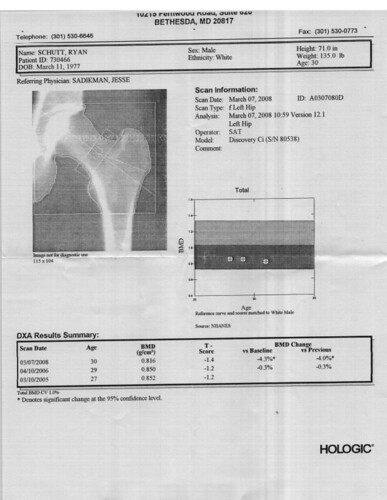 Left Hip Scan