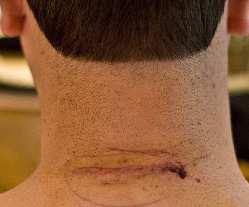 Surgery Scar 2