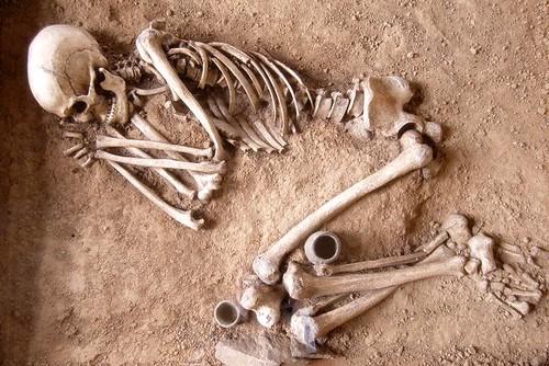 skeletukas