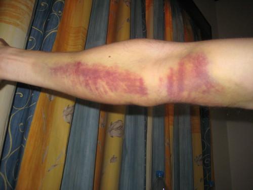 Hematoma Blood After Draw