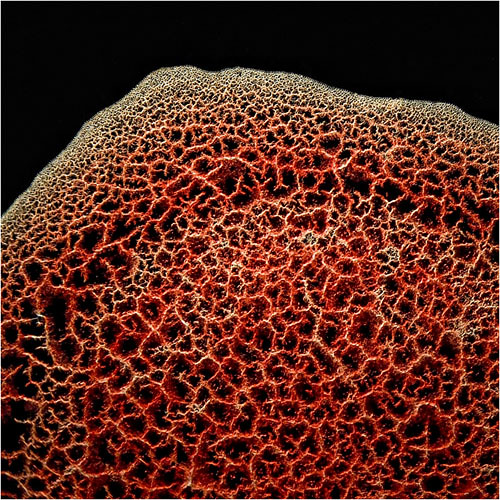 Example of Dark Field Microscopy | Blood Clot