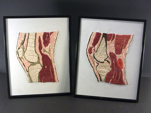 Two embroidered MRI slices