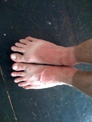 Dirty and sunburned. Yeah, my feet look kind o...