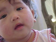 Baby Rash :(