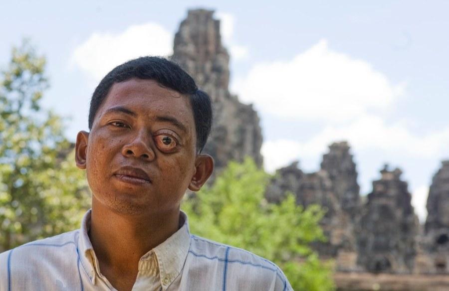 My Driver in Cambodia