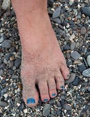 Hannah's sandy foot