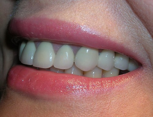 Coronas dentales de porcelana