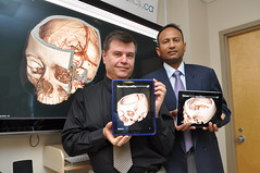 Health Canada approved iPhone/iPad app for stroke diagnosis